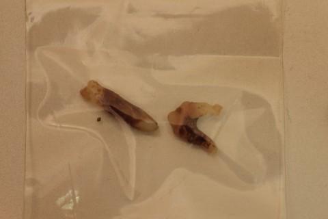 抜歯をした歯